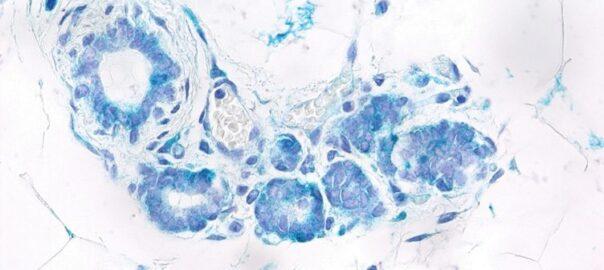 càncer de mama